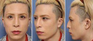 ローランド ホスト 元の顔 整形前 画像 本名 父親