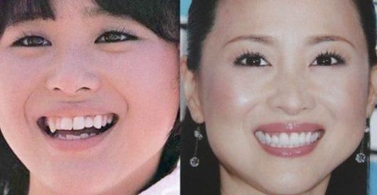 松田聖子 顔 パンパン 不自然 おでこ 出す 理由 若い頃 画像
