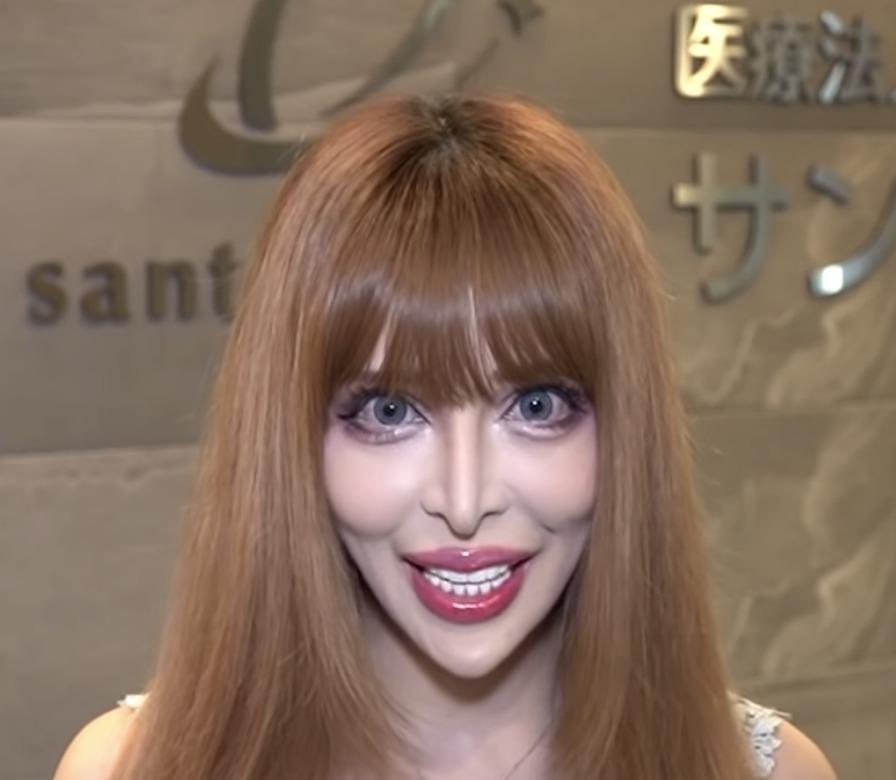 ヴァニラ 現在 顔 画像 ヤバい 元の顔 すっぴん 収入源